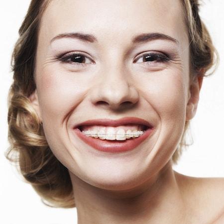 General Dentistry Bellevue - Orthodontics
