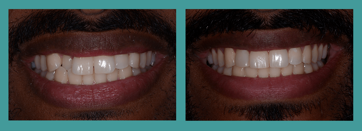 Bellevue dentists - Image of a patients smile before and after orthodontics and veneers