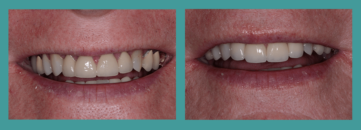 Bellevue Dentists - Image of a new set of composite veneers from Dr. DeWood
