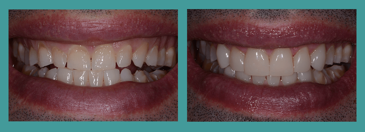 Bellevue Dentists - Image of a before and after shot showing the benefits of veneers